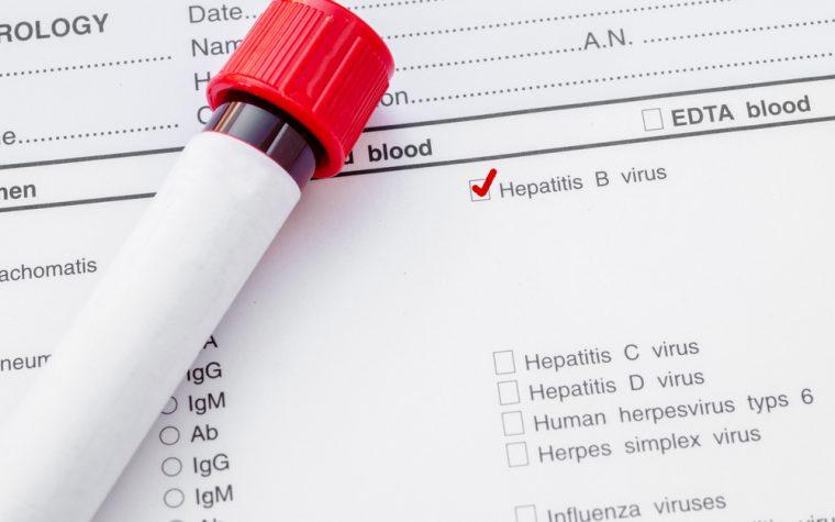 Аналіз крові HBsAg